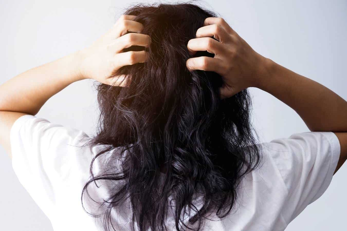 Oily Scalp and Dry Hair